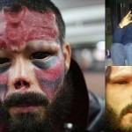 キャプテンアメリカの悪役レッドスカルに憧れて顔を改造した男
