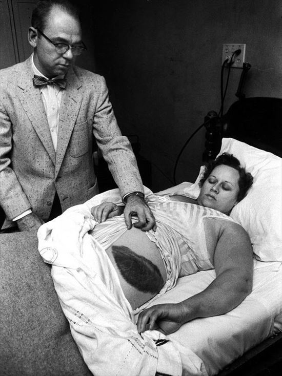 1954年 隕石と衝突した女性