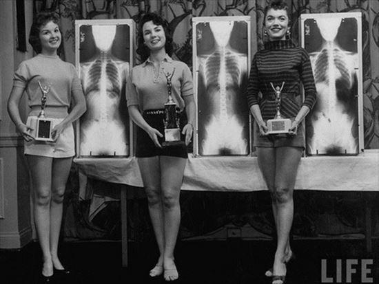 1956年 さらにマニアックなミス・レントゲンの受賞者