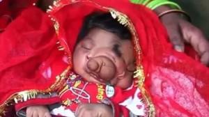 ガネーシャの化身!? 先天性の障害をもって生まれた女の子が崇拝される存在に!
