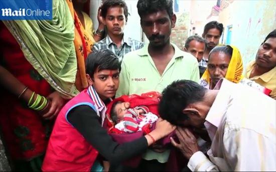ガネーシャのような顔で生まれた女の子の赤ちゃん