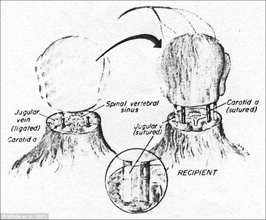 末期症状のロシアの科学者が、自身の頭部移植を計画中! 来年実現か?