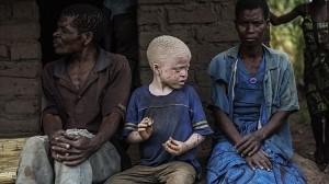 アフリカではアルビノの人間を食べると、不思議な力が得られると信じられている