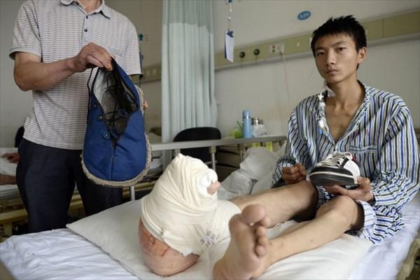 現在も成長中! 巨指症により右足の成長が止まらない男性