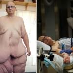 元世界一太った男性 胃のバンド手術で痩せたものの、垂れた皮膚だけで21キロ
