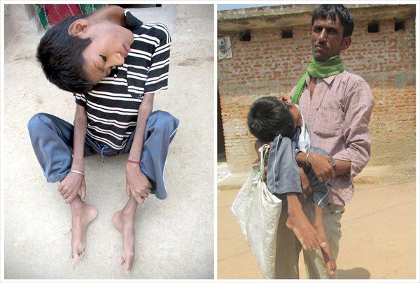 首が180度曲がったインドの少年 善意の寄付で手術がおこなわれる見通し!