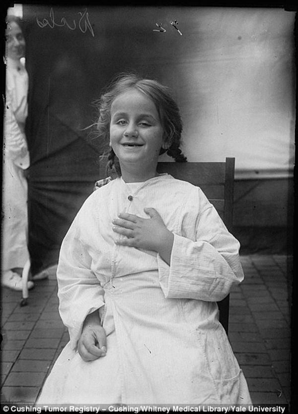 大学の地下室で発見された、およそ100年前の初期の脳手術患者の写真