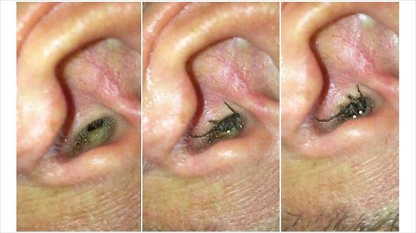 耳の違和感と激痛の犯人は、耳の中に棲みついたクモ!?