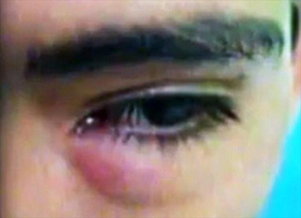 少年の目からワーム状の生物が… 眼科医がバジルの葉とピンセットで摘出!