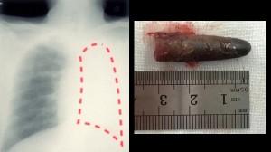 レントゲン写真で左肺が無かった男 原因は20年前に吸い込んだペンのキャップ