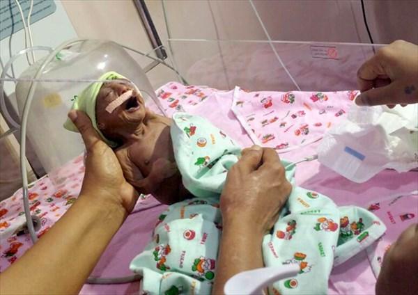 老人のような姿で生まれた赤ちゃん 両親に捨てられるも祖父がヤギの乳で助ける