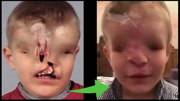 生まれつき目・鼻・上あごを持たずに生まれた男の子 再建手術で新たな顔を得る