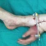 事故で右手を切断してしまった男性 一時的に足に移植し一ヶ月後に腕に再接合!