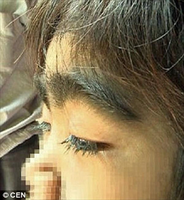 先天性多毛症の少女 レーザーによる永久脱毛のための寄付を求める