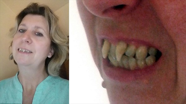 歯周病で歯がヴァンパイアの牙のようになった女性 歯科医を訴え480万獲得