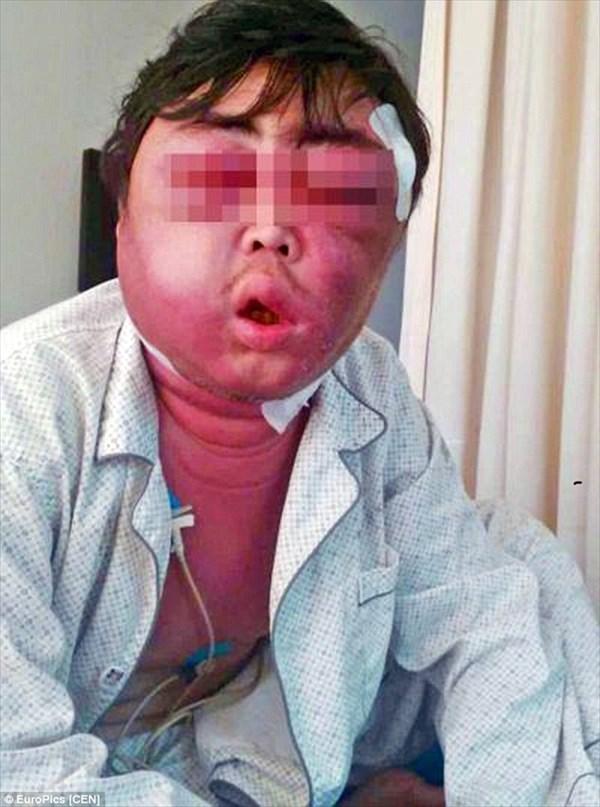 えッ!?蚊で? 蚊に刺された男性、顔パンパンに! 2か月経っても改善せず