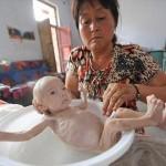 肛門を持たずに生まれた赤ちゃん 生後三か月で体重2.4キロ 家族が支援要求