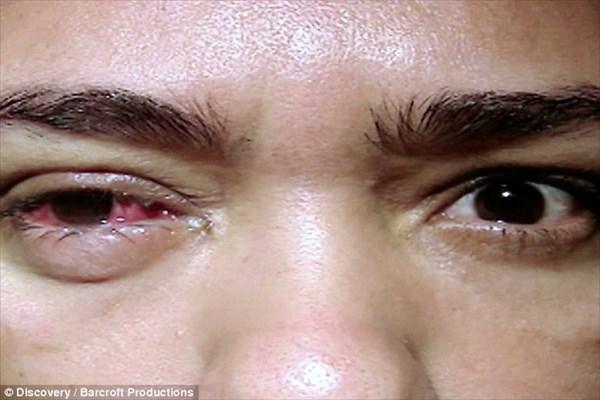原因不明! 白い涙を流す女性!! 涙は時間とともに結晶化し激痛を引き起こす