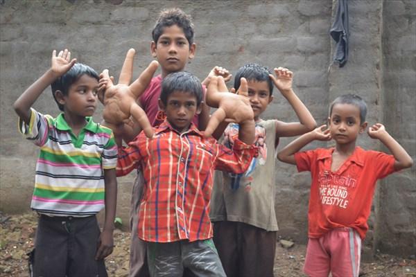 巨大な手により、学校へ行くことを拒否されたインドの少年 ついに手術へ!