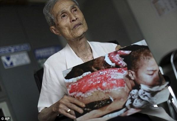 今日で長崎原爆から70年 爆心地から1.8キロで被ばくした谷口稜曄さん