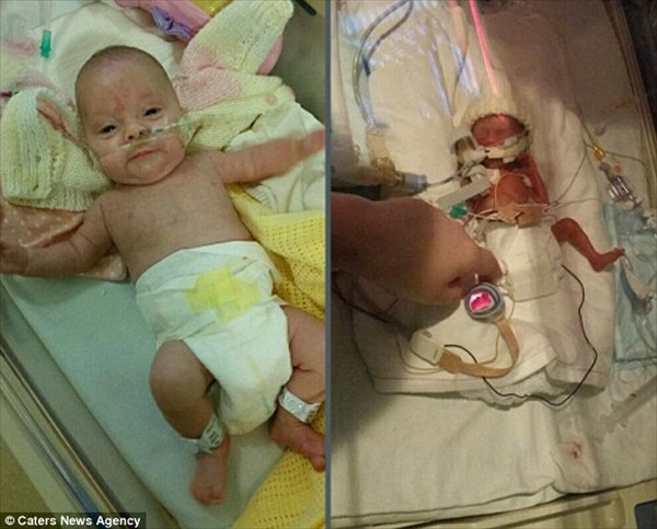 結婚指輪が腕にハマる! 13週も早く生また未熟児の赤ちゃん 無事に回復!
