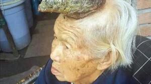 中国・四川省の高齢女性の頭部に長さ13センチの角が生える! ガンの可能性も