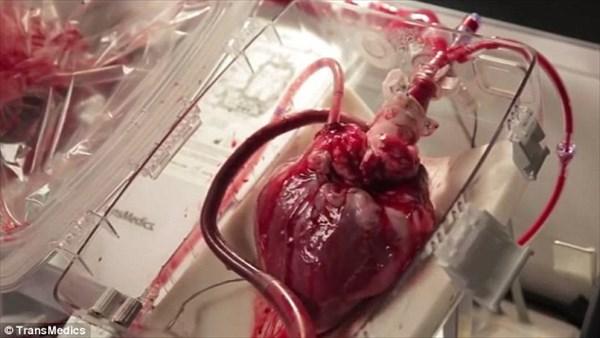 心臓を鼓動させたまま移植患者の元へ! 最新移植方法で第一号患者の手術成功!