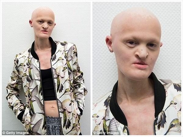 【画像】病気のせいで歯や髪が無い女性、ファッションモデルとして活躍