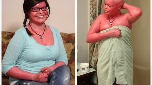 7倍の速度で皮膚が成長! ハーレクイン魚鱗癬の女性 世界で初めて母親へ