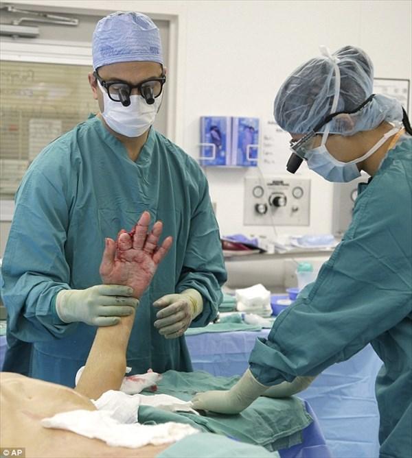 車に潰された手を損傷&火傷した87歳男性 一時的に手を腹部に移植し回復へ!