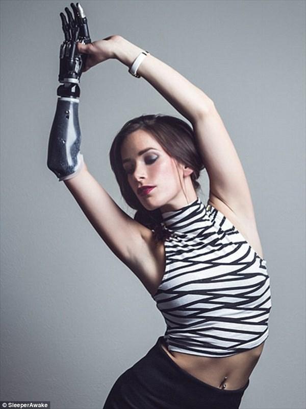 バイオニックアームを持つモデル NYFWのランウェイに出演することが決定!