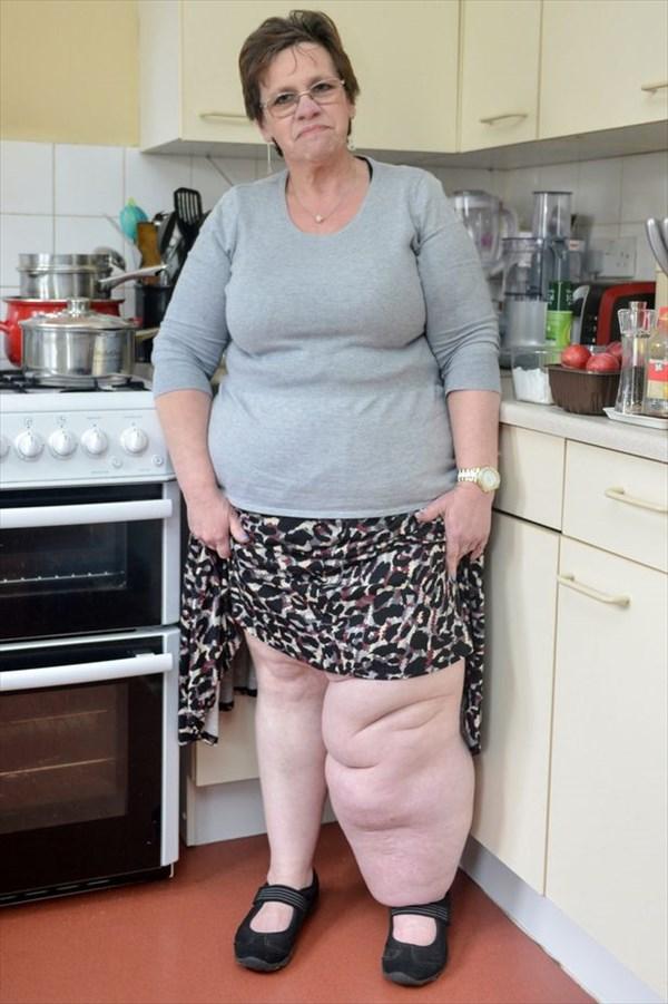 ガンの後遺症「リンパ浮腫」で足が巨大化した女性 保険適用が認められ治療へ