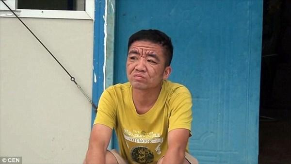 老人に見えるが実は30歳! まるで老人のような姿になってしまう謎の病気!