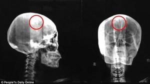 長年の頭痛の正体は、脳に突き刺さっていた4.5センチの針! 46年間も脳に