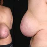 背中におっぱいを持っていた女性 その正体は脂肪腫!!