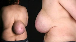 背中におっぱいを持っていた女性 その腫瘍の正体は脂肪腫!!
