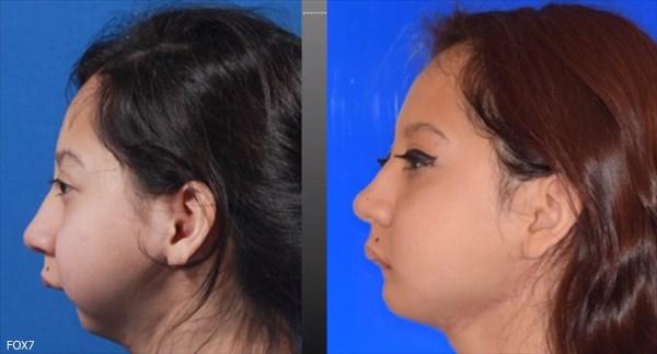 下アゴを持たずに生まれた少女 ヒザの骨を移植し、食事ができるように!