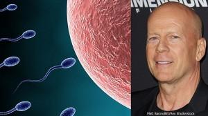 ハゲ=男らしさの象徴は誤り? 若ハゲの男性は、精子の数が少ないことが判明!