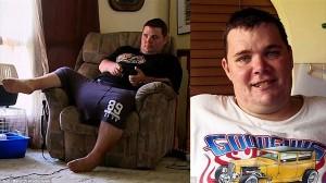睾丸がスイカサイズになってしまった男性 歩行困難になり感染症も発症し入院