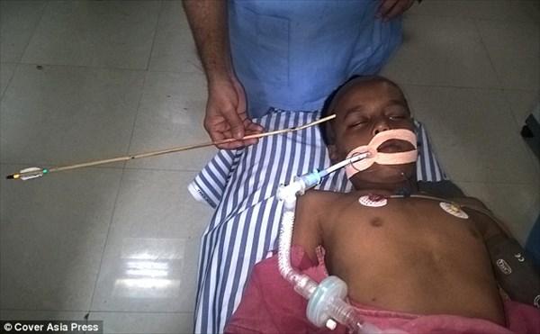 アーチェリー練習中に事故 矢が反対側の頭蓋骨まで貫通するも無事回復した少年