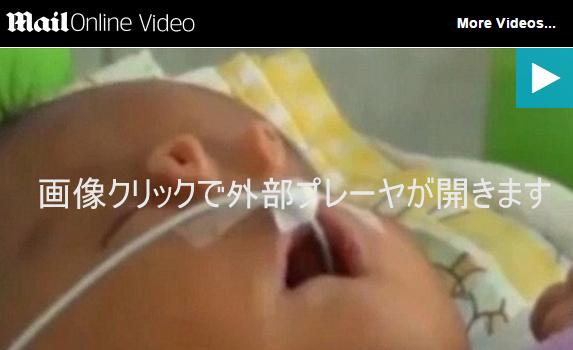 パトウ症候群という遺伝子疾患によってチューブ状の鼻を持って誕生した赤ちゃん