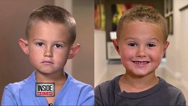 「エルフの耳」とからかわれイジメられた6歳の男の子 整形手術をする!