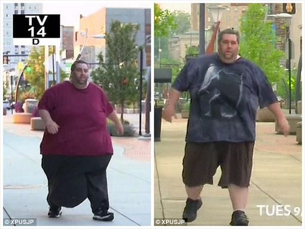 重量36キロの陰嚢を持つ男 14時間に渡る手術の末、7年ぶりに妻とベッドへ