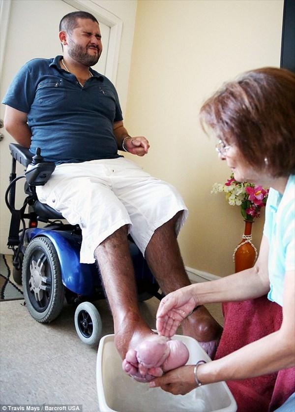 プロテウス症候群で足がボコボコになった男性 足を切断するための募金を募集中