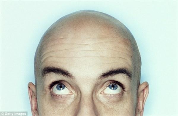 発毛薬に革命!? 塗れば10日で髪が生える新薬を発明! 既にマウスで成功!