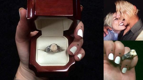 彼女に自分の親知らず(歯)で出来た婚約指輪を贈った男 なんと無事に入籍!