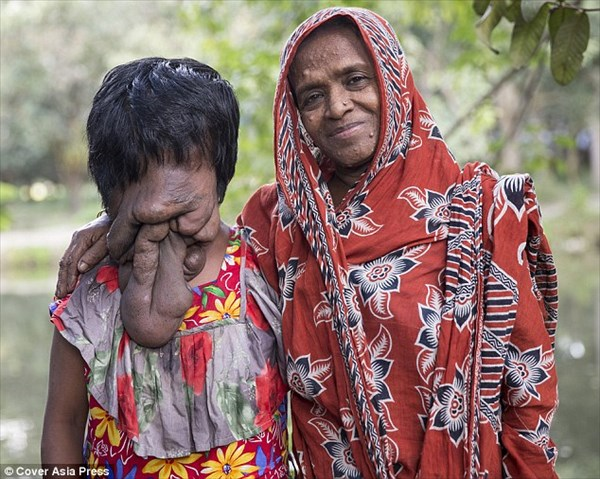 神経線維腫症によって顔が皮膚に覆われたインドの女性 地元関係者が募金を募る