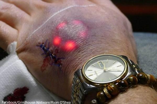 これであなたもサイボーグ? 埋め込むと皮膚の下から発光するインプラント誕生