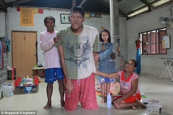 身長264cm! 世界一背の高い男性(非公認) 体の成長によって亡くなる