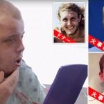 火事で顔を失った消防士 顔面移植により14年ぶりに新しい顔を得る!